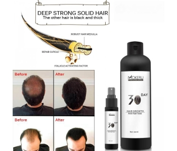 Herbal Hair Regrowth Oil